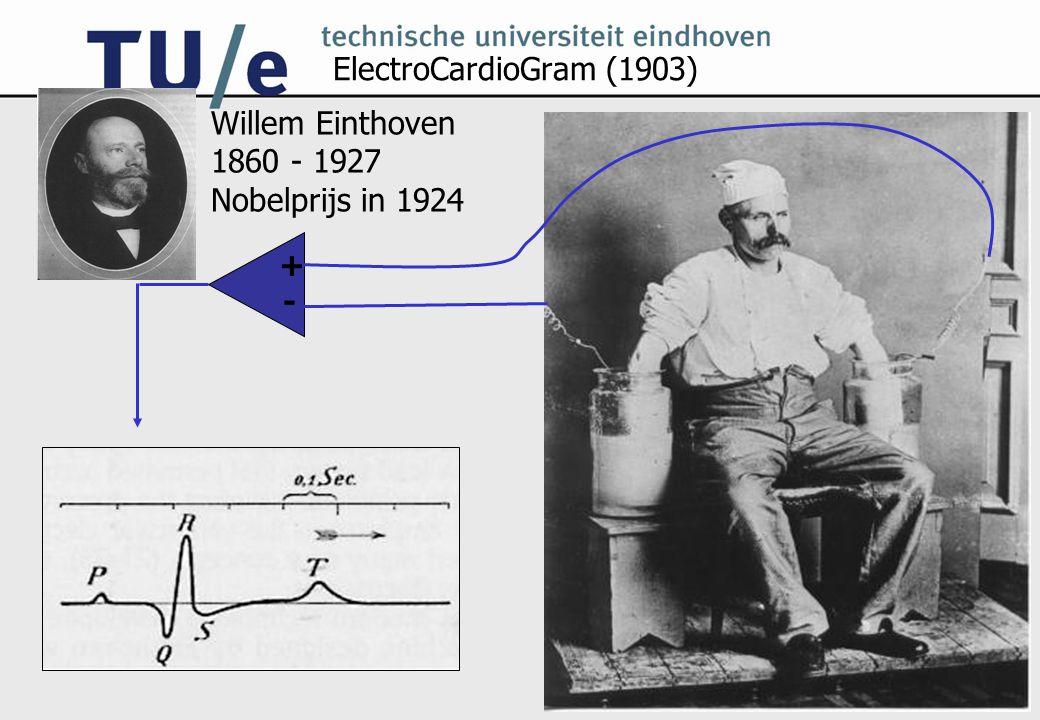 ElectroCardioGram (1903) Willem Einthoven 1860 - 1927 Nobelprijs in 1924 + -