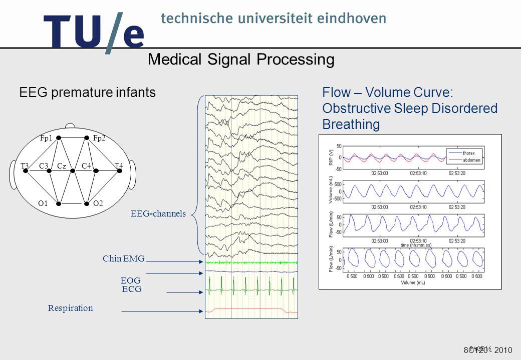 Medical Signal Processing