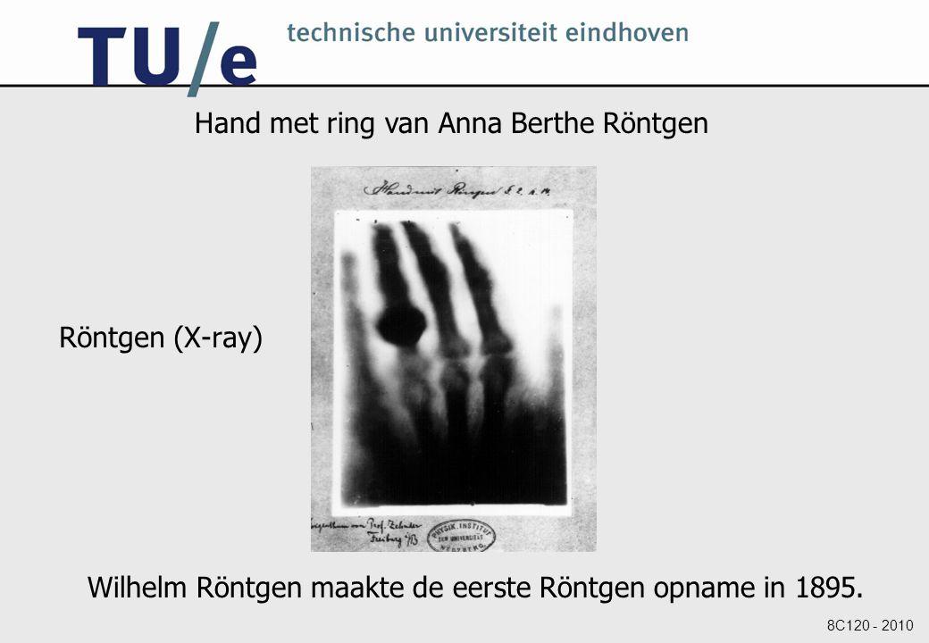 Hand met ring van Anna Berthe Röntgen