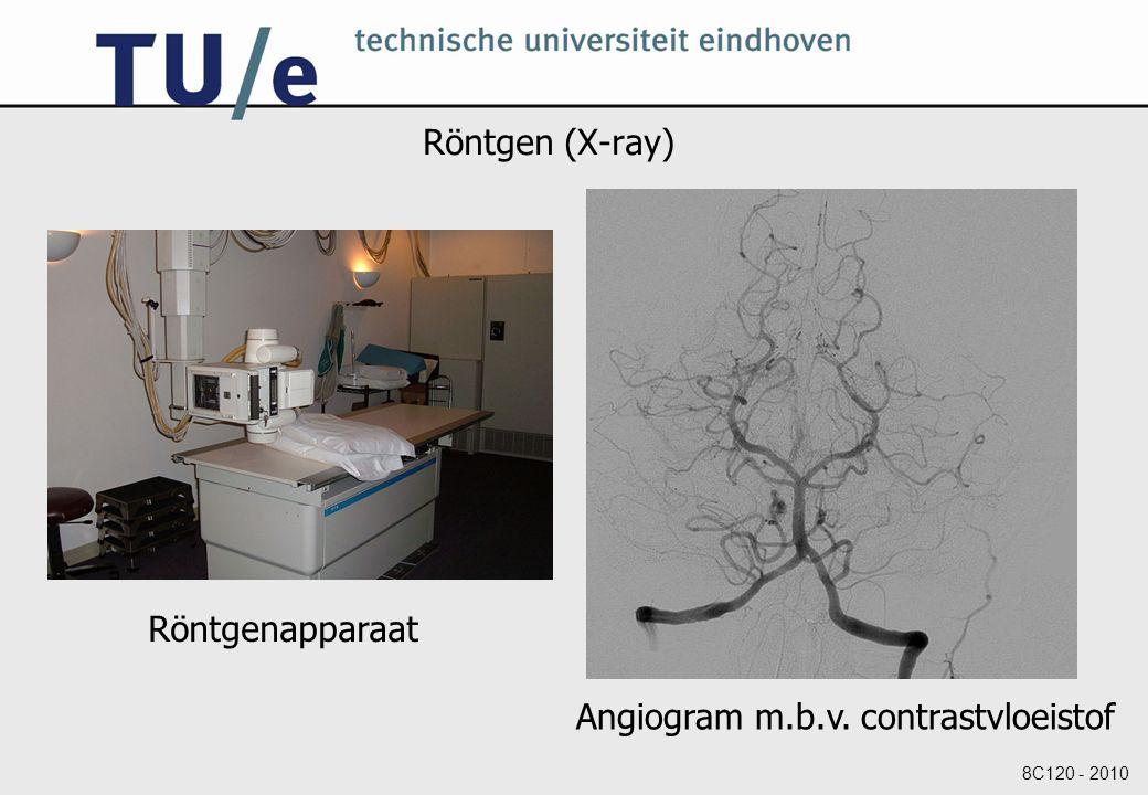 Röntgen (X-ray) Röntgenapparaat Angiogram m.b.v. contrastvloeistof