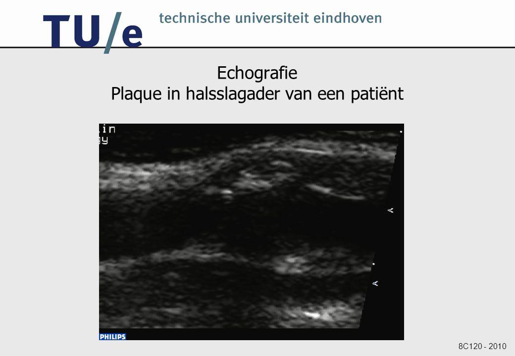 Echografie Plaque in halsslagader van een patiënt