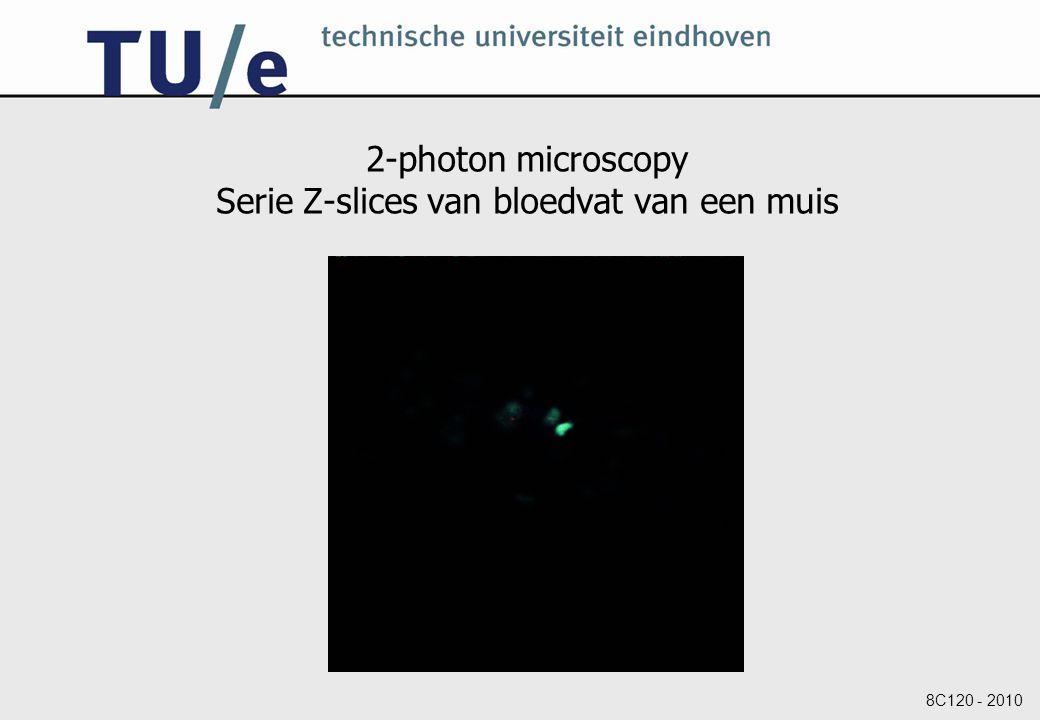 2-photon microscopy Serie Z-slices van bloedvat van een muis