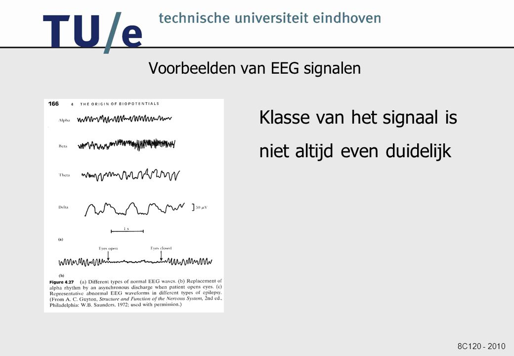 Voorbeelden van EEG signalen