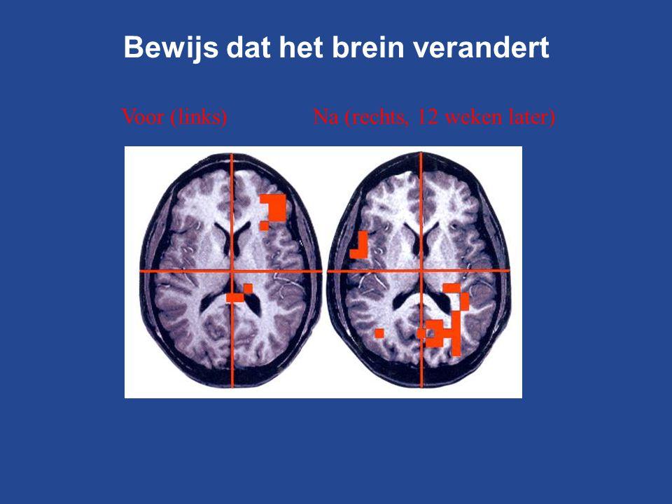Bewijs dat het brein verandert