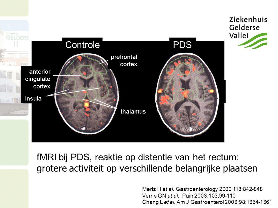 Controle PDS. prefrontal. cortex. anterior. cingulate. cortex. insula. thalamus.