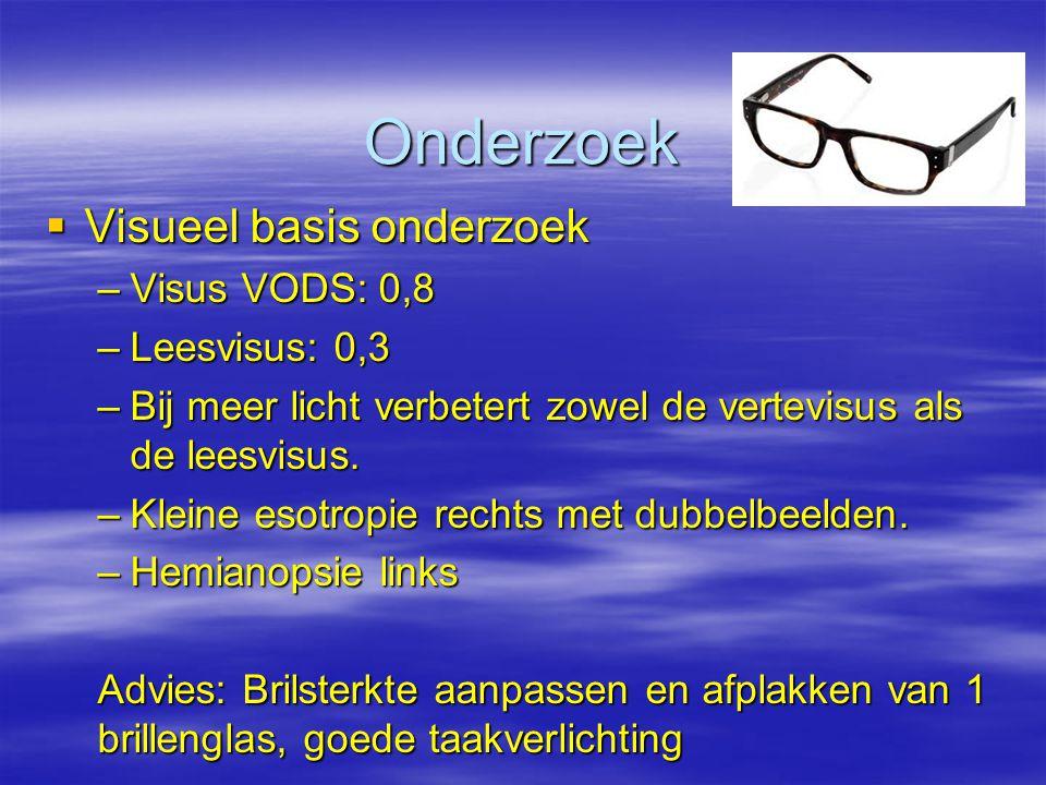 Onderzoek Visueel basis onderzoek Visus VODS: 0,8 Leesvisus: 0,3