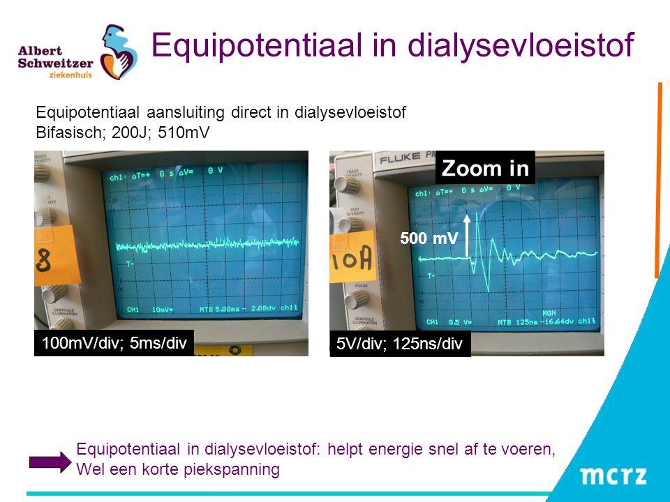 Equipotentiaal in dialysevloeistof