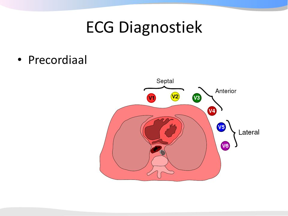 ECG Diagnostiek Precordiaal