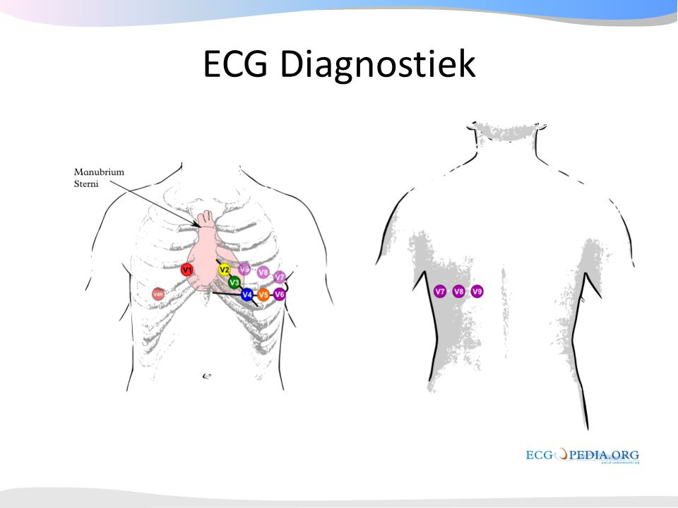 ECG Diagnostiek