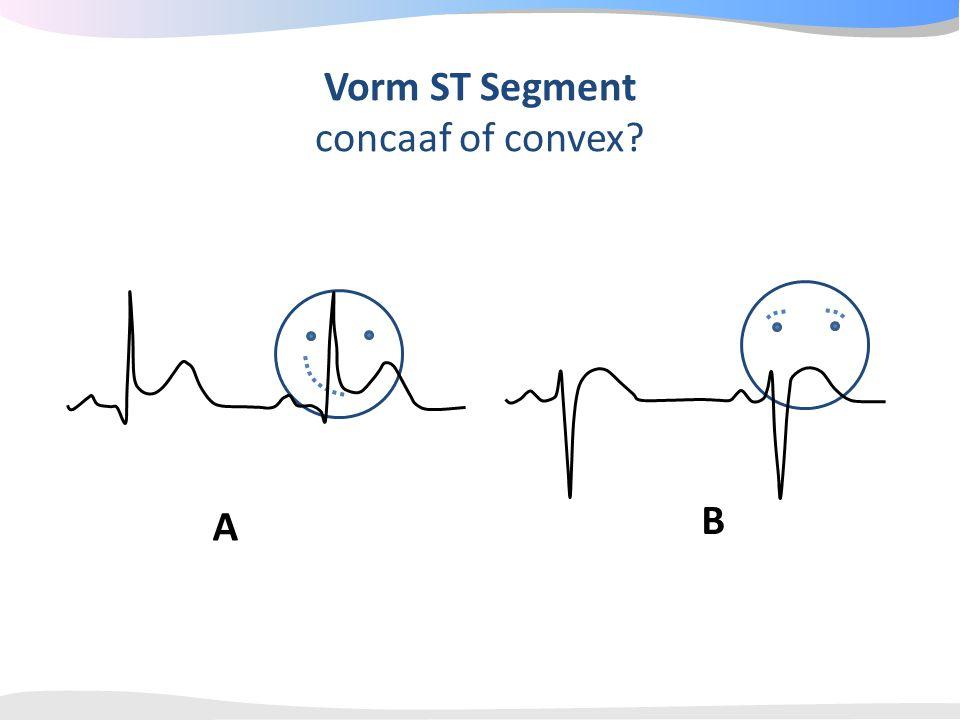 Vorm ST Segment concaaf of convex B A