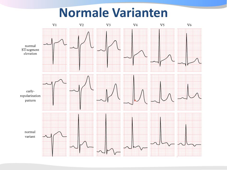 Normale Varianten Figure 1. Electrocardiograms Showing Normal ST-Segment Elevation and Normal Variants.