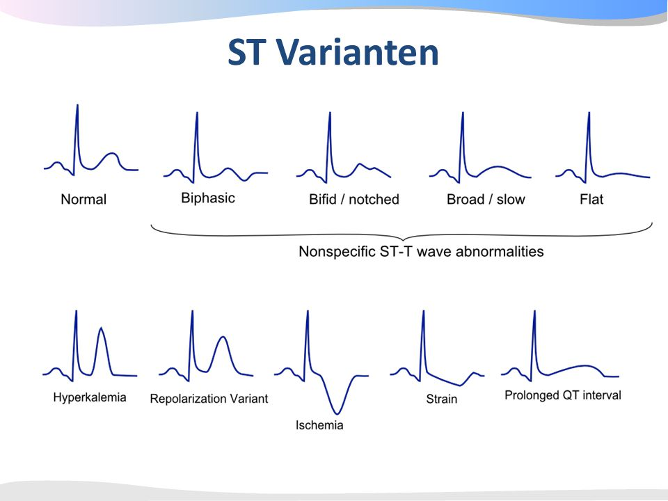 ST Varianten