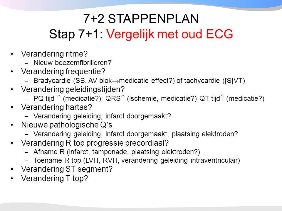 7+2 STAPPENPLAN Stap 7+1: Vergelijk met oud ECG