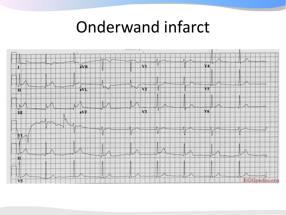 Onderwand infarct 43