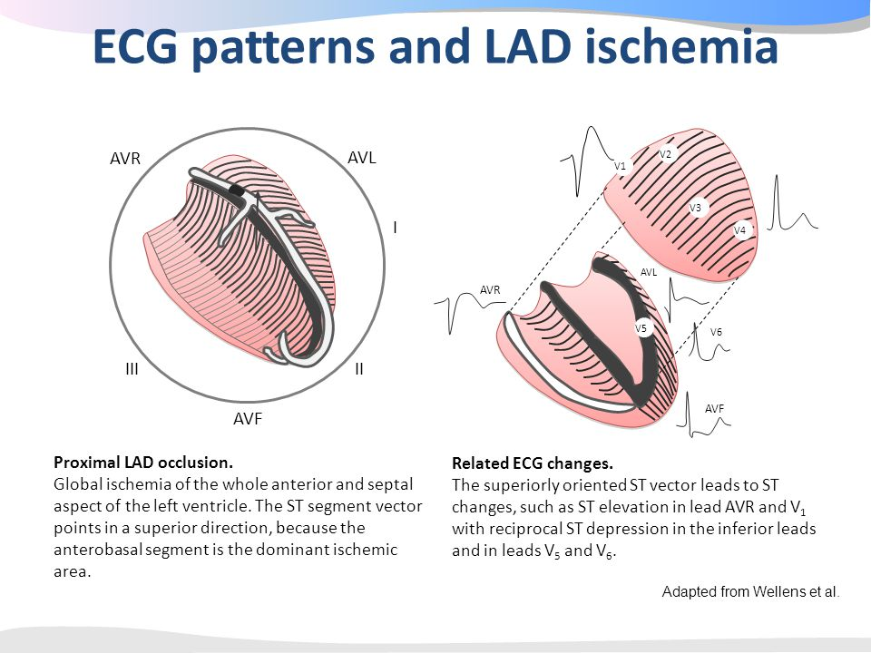 ECG patterns and LAD ischemia