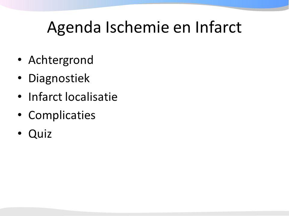 Agenda Ischemie en Infarct