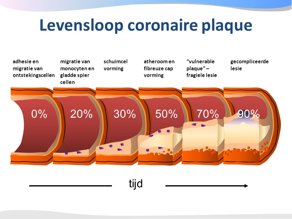 Levensloop coronaire plaque