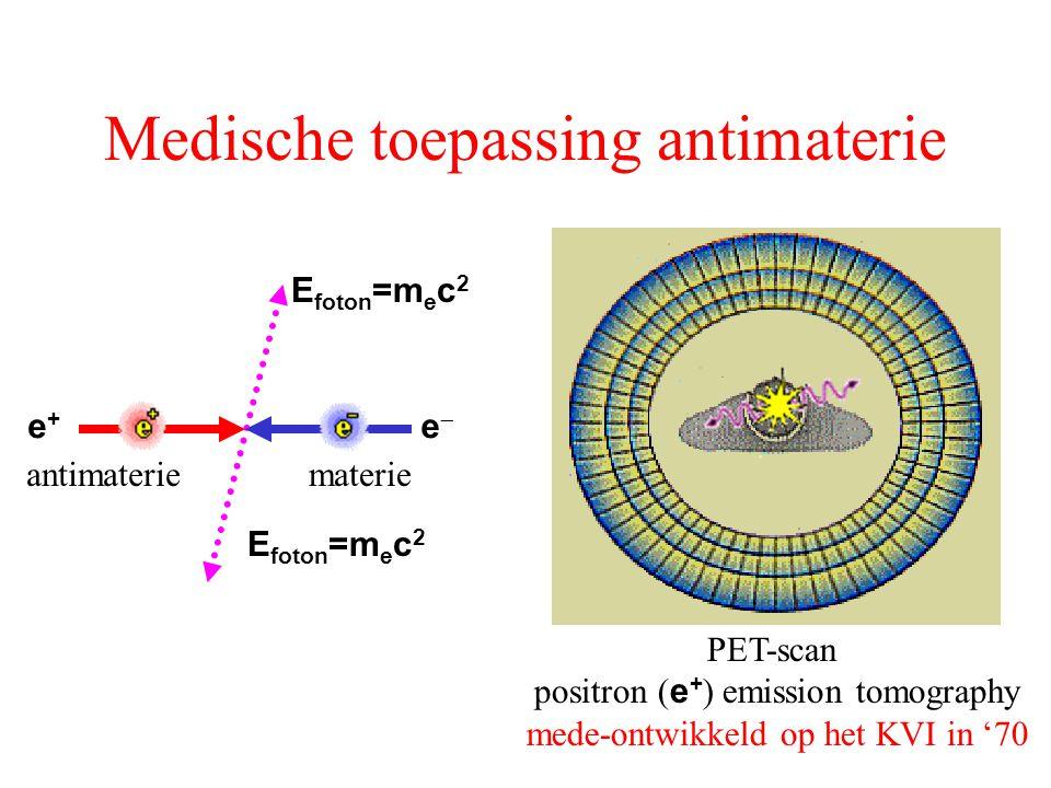 Medische toepassing antimaterie