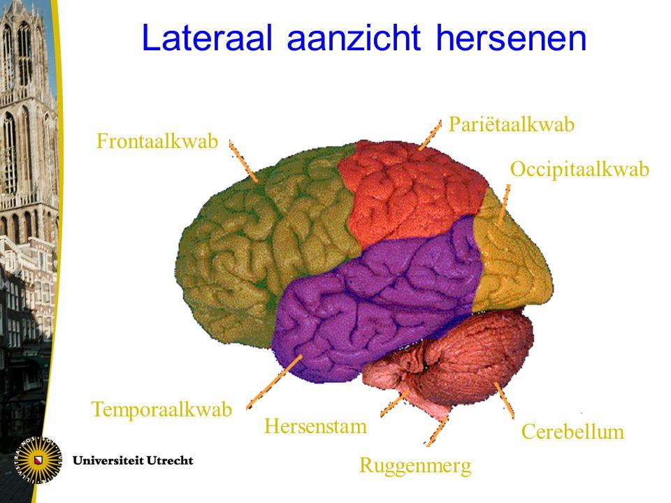 Lateraal aanzicht hersenen