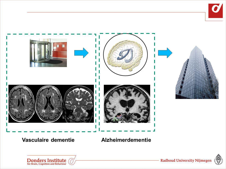 Vasculaire dementie Alzheimerdementie Alzheimerdementie