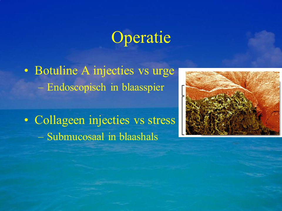 Operatie Botuline A injecties vs urge Collageen injecties vs stress