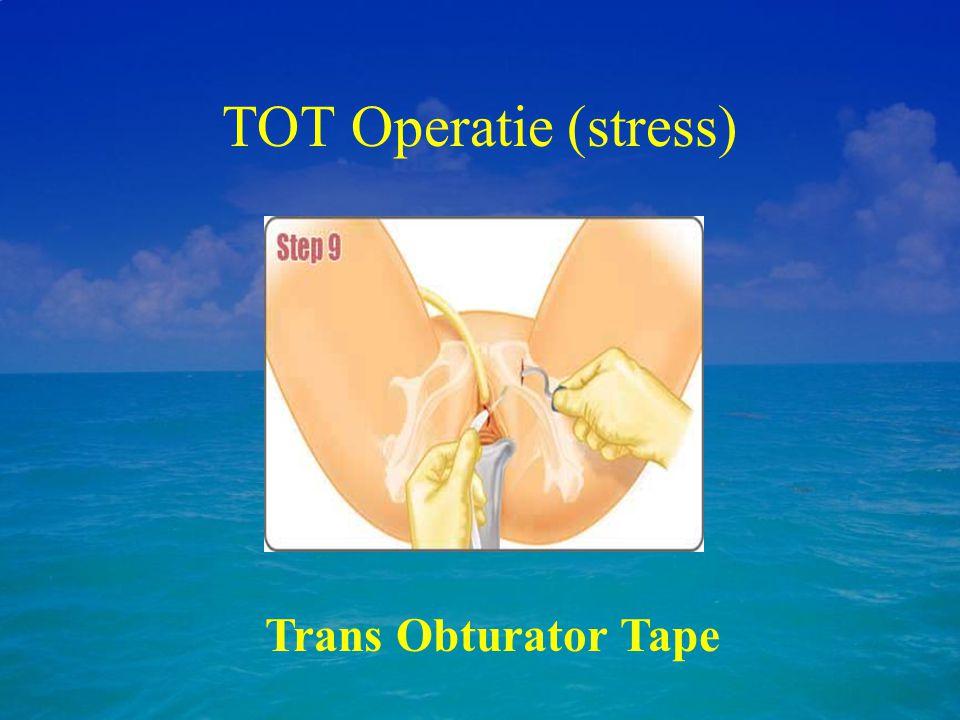 TOT Operatie (stress) Trans Obturator Tape