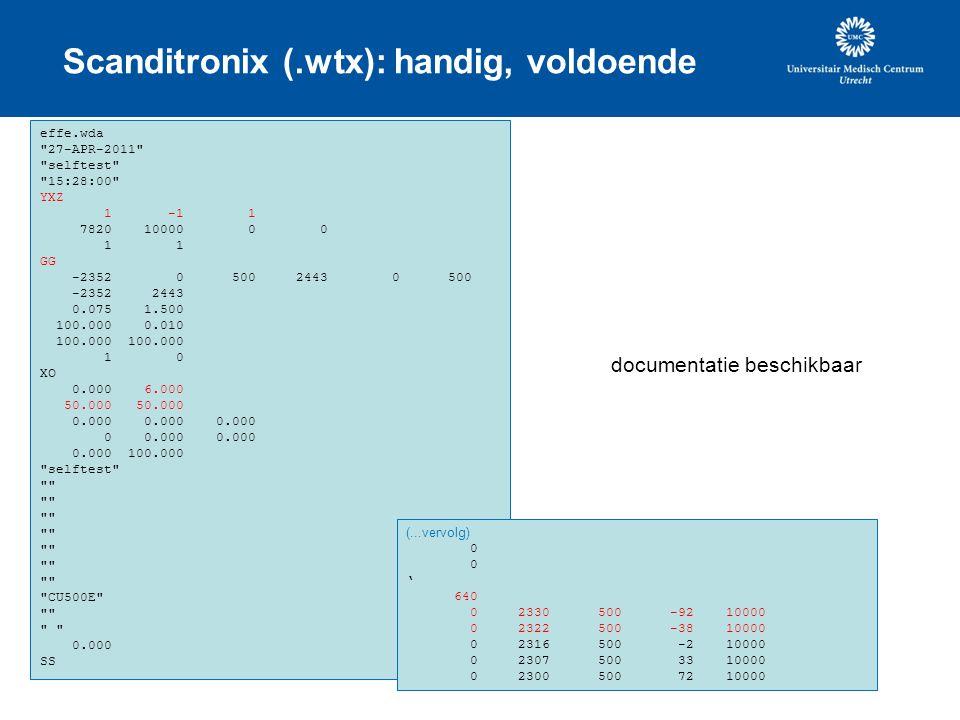 Scanditronix (.wtx): handig, voldoende