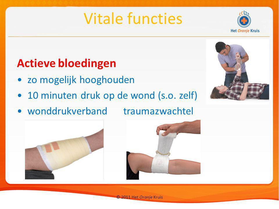 Vitale functies Actieve bloedingen zo mogelijk hooghouden