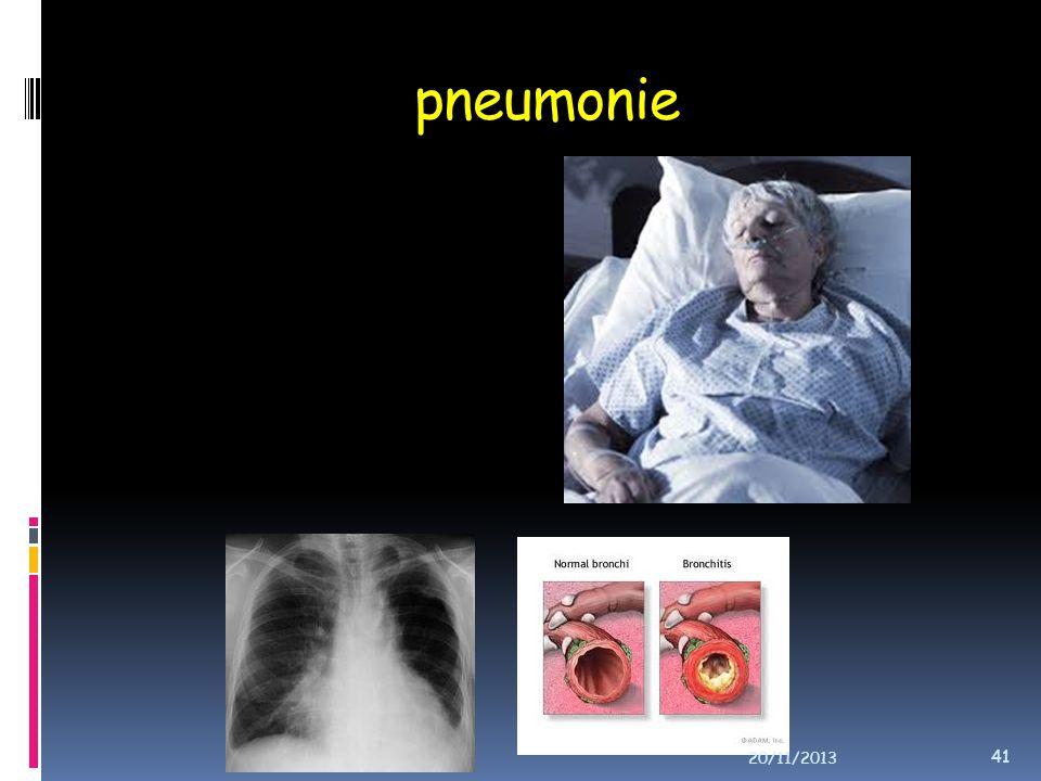 pneumonie 20/11/2013