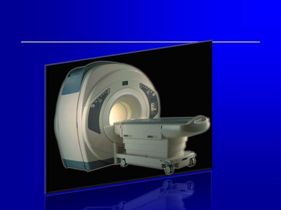 Om dit gebied in de hersenen te onderzoeken hebben we kinderen met autisme en kinderen zonder autisme onderzocht met een MRI-scanner. Met deze scans kun je de hersenactiviteit meten.
