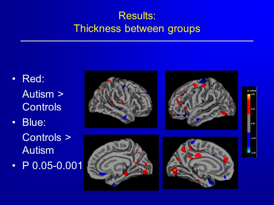 Results: Thickness between groups