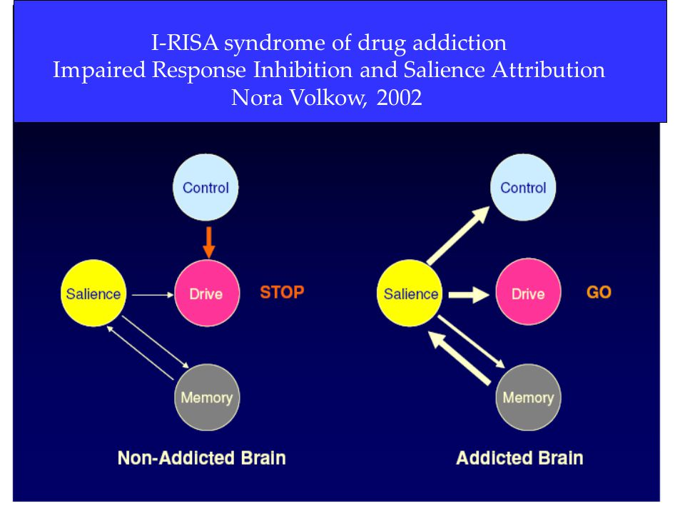 I-RISA syndrome of drug addiction