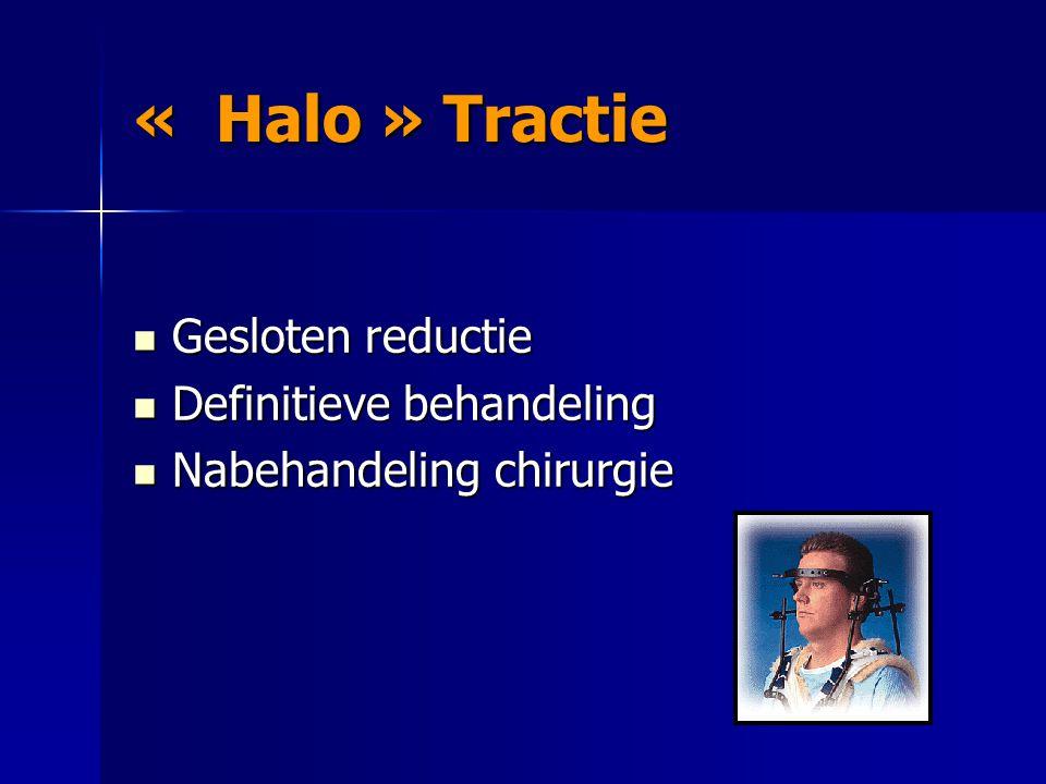 « Halo » Tractie Gesloten reductie Definitieve behandeling