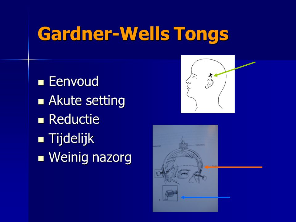 Gardner-Wells Tongs Eenvoud Akute setting Reductie Tijdelijk