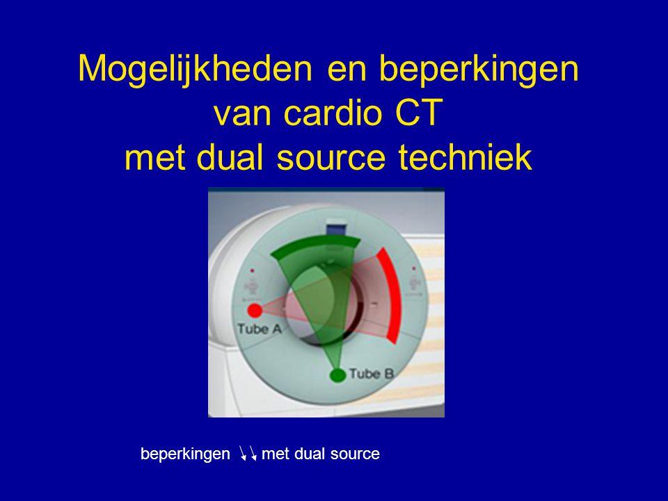 Mogelijkheden en beperkingen van cardio CT met dual source techniek