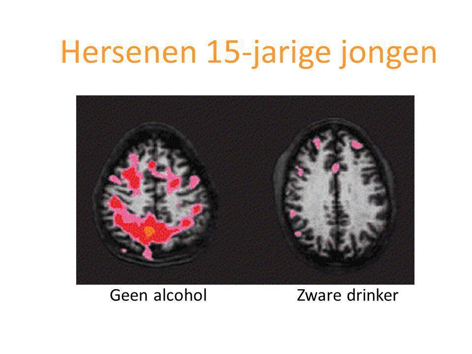 Hersenen 15-jarige jongen