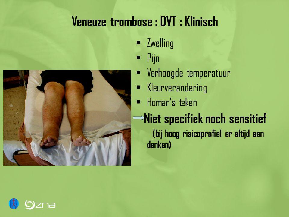 Veneuze trombose : DVT : Klinisch