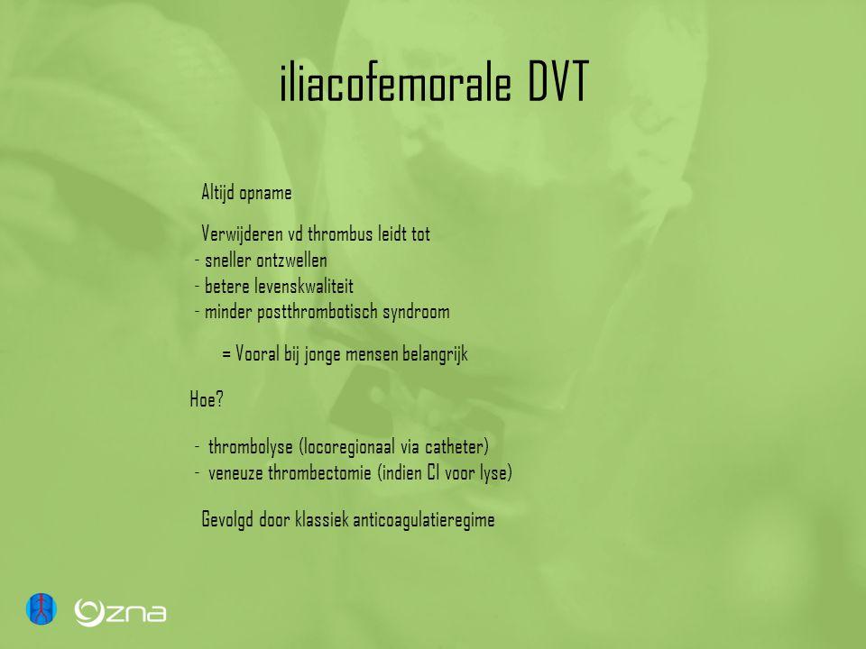 iliacofemorale DVT Altijd opname Verwijderen vd thrombus leidt tot