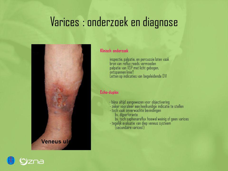 Varices : onderzoek en diagnose