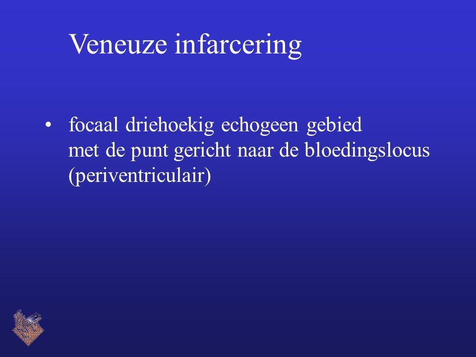 Veneuze infarcering focaal driehoekig echogeen gebied