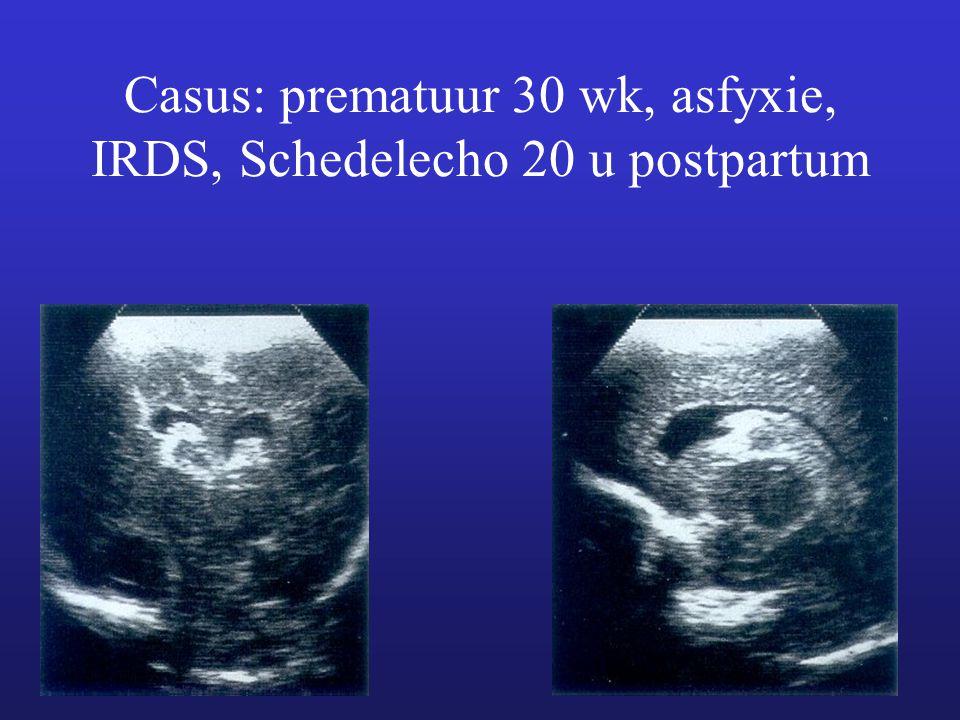 Casus: prematuur 30 wk, asfyxie, IRDS, Schedelecho 20 u postpartum