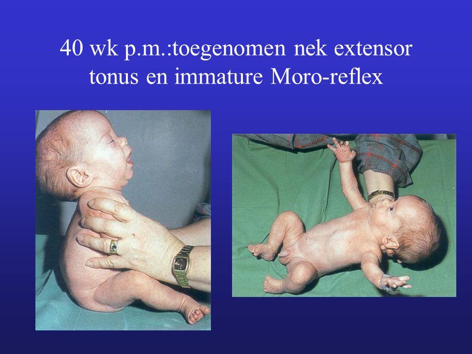 40 wk p.m.:toegenomen nek extensor tonus en immature Moro-reflex