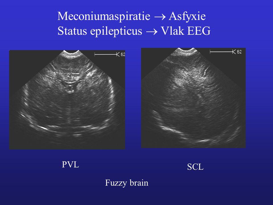 Meconiumaspiratie  Asfyxie Status epilepticus  Vlak EEG