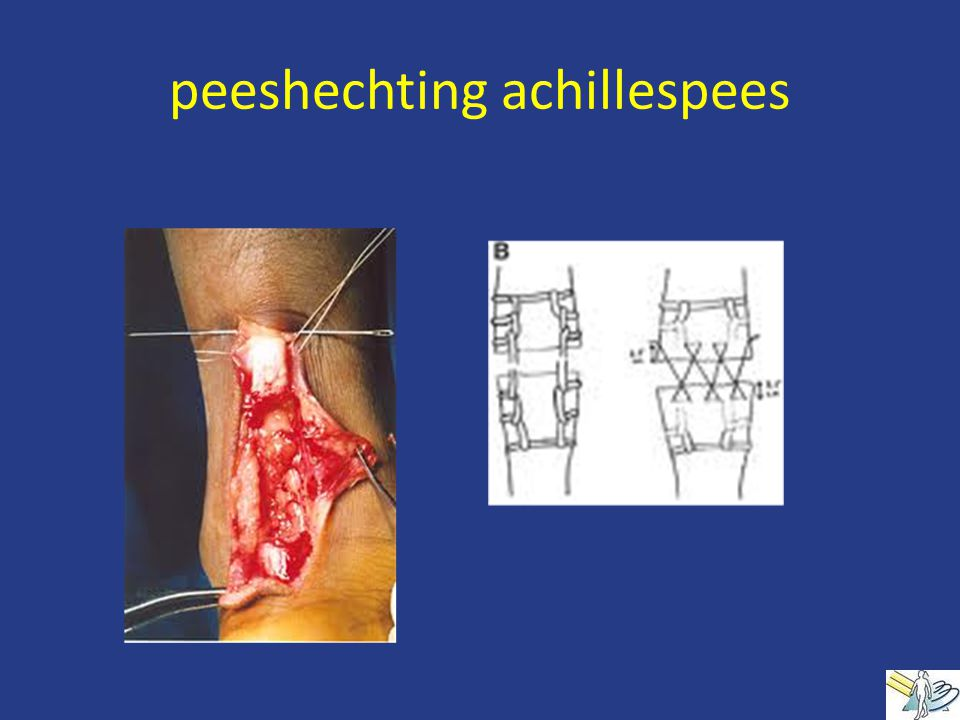 peeshechting achillespees