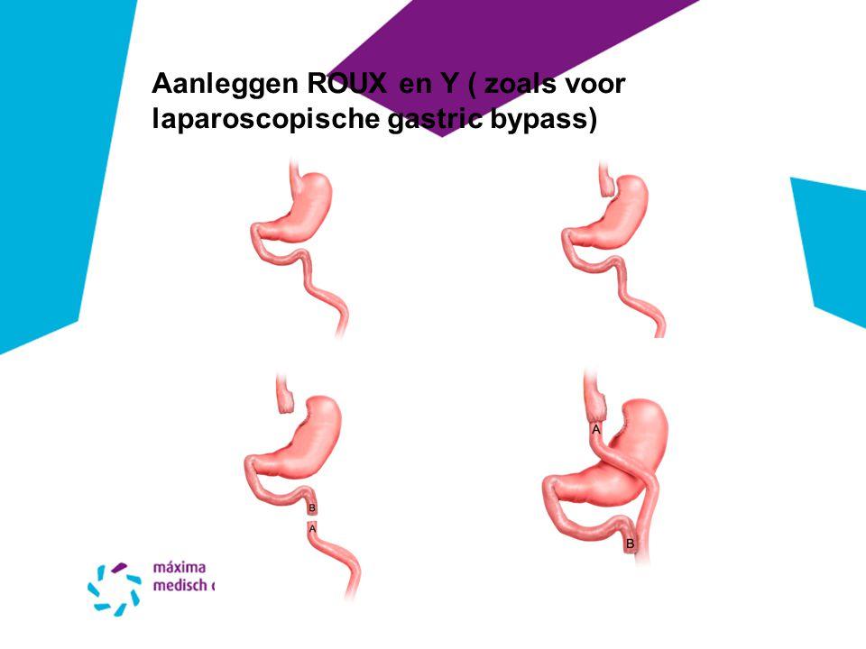 Aanleggen ROUX en Y ( zoals voor laparoscopische gastric bypass)