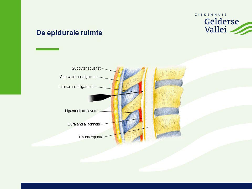 De epidurale ruimte