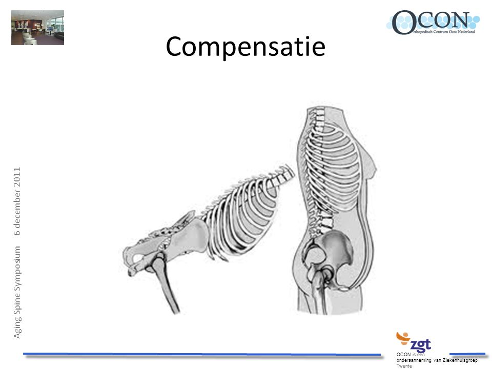 Compensatie Aging Spine Symposium 6 december 2011 OCON is een