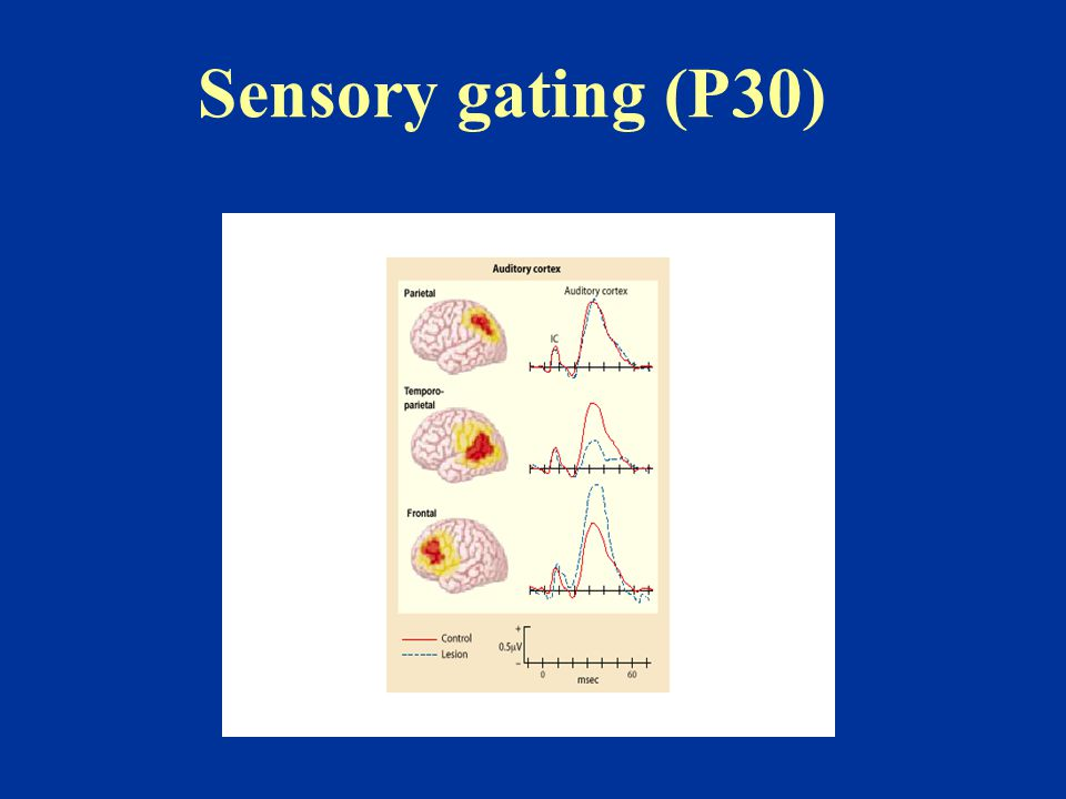 Sensory gating (P30)