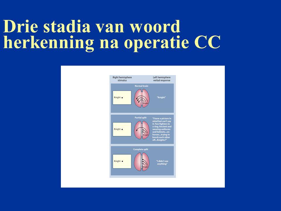 Drie stadia van woord herkenning na operatie CC