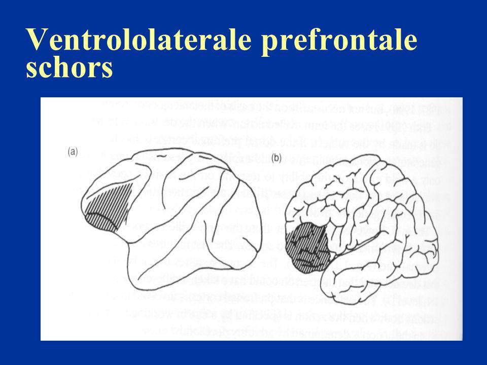Ventrololaterale prefrontale schors